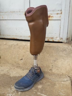 Below Knee Prosthetic legs
