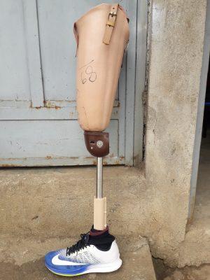 Leg Prosthetic – Plastic With Metal